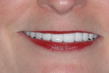 Barbara K after teeth