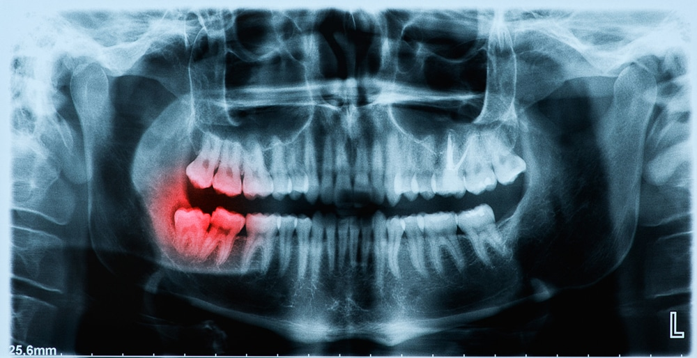 Xray of Wisdom tooth to be extracted using oral surgery in Columbus Ohio