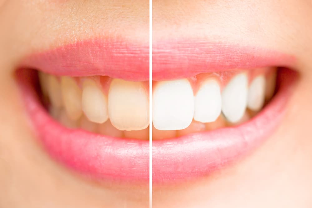 Close-up of a before and after of whitened teeth from cosmetic dentistry