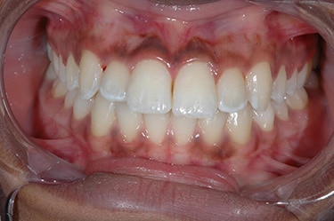 Lana D teeth after