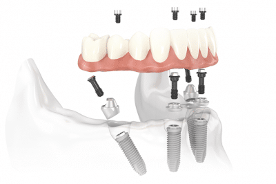 A diagram of a full mouth implant denture
