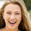 A young woman smiling widely - Teeth Whitening