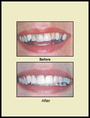 Before & After Prosthodontics Reference 2