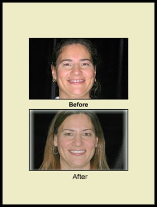 Before and after, general dentistry in Columbus, OH