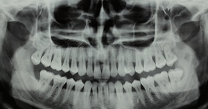An x ray of a mouth