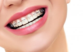 Close up of woman's smile with braces on her top teeth