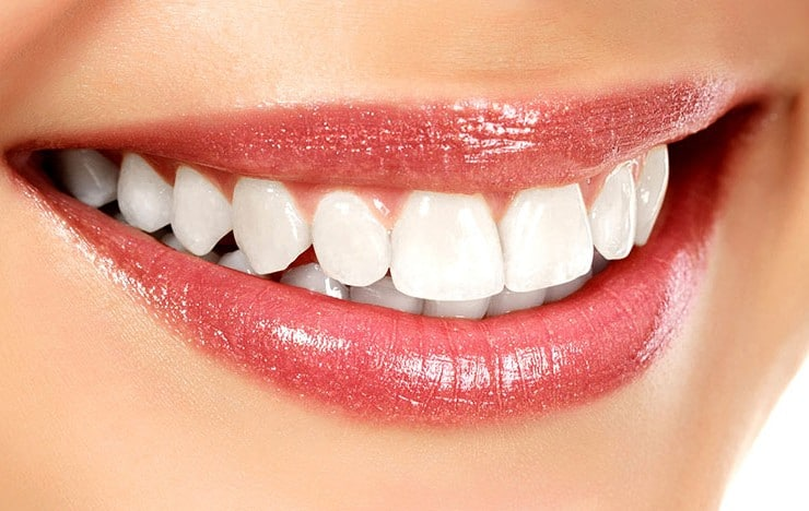 Instant orthodontics can help you achieve a brighter smile