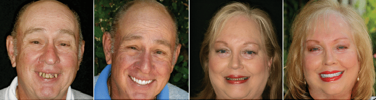 A berfore and after of two patients who used the FOY® Dentures, find out more at Firouzian Dentistry in Columbus Ohio