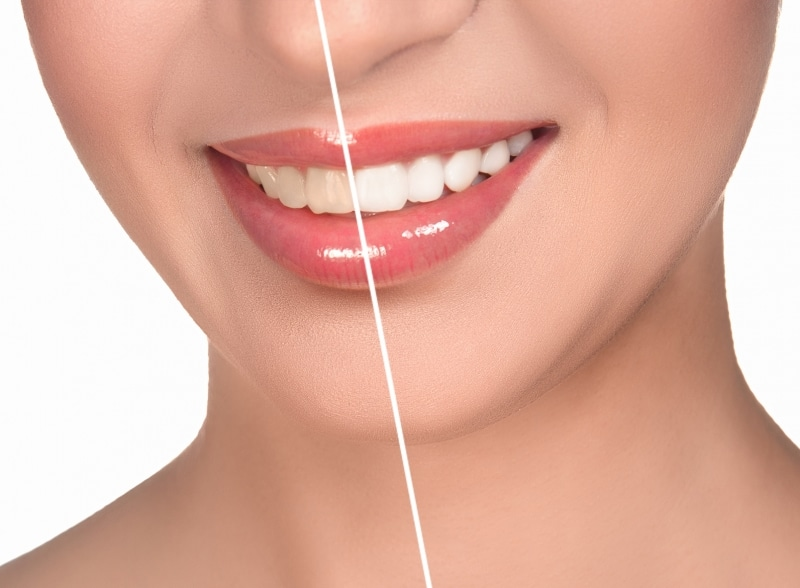 a image of a woman with a line down the middle of her smile showing the difference in color between two sets of dental work