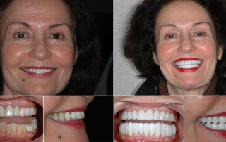 Full mouth reconstruction patient, Mary