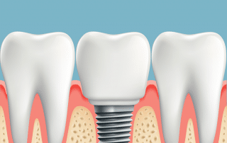 Human teeth and Dental implant