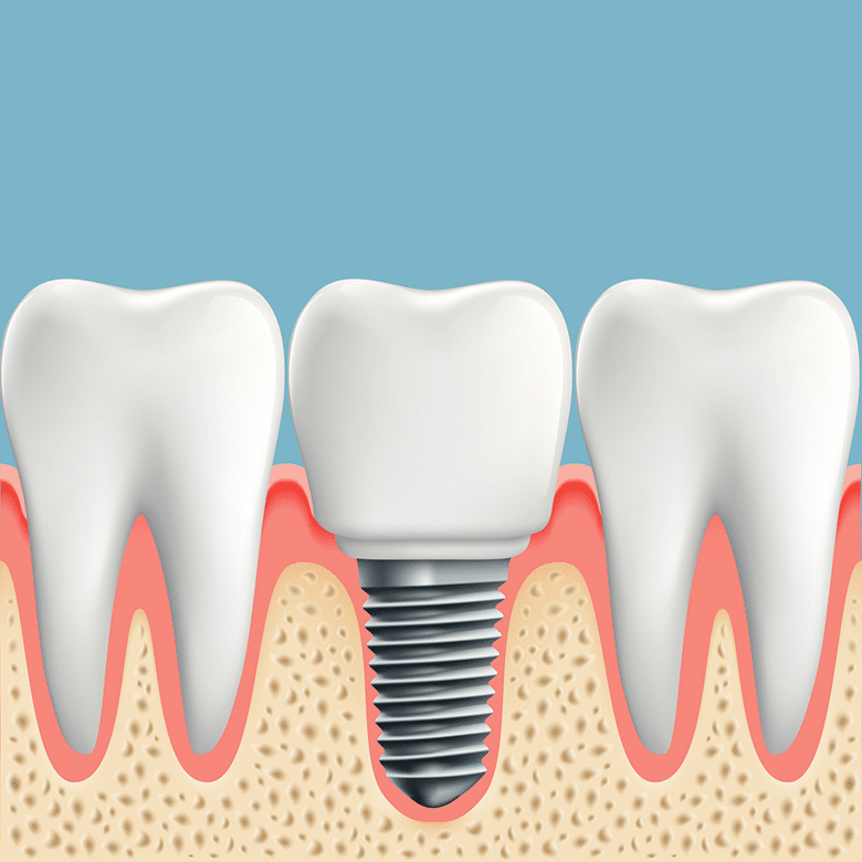 A digram showing a real tooth next to a dental implant