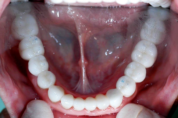 patient after above teeth