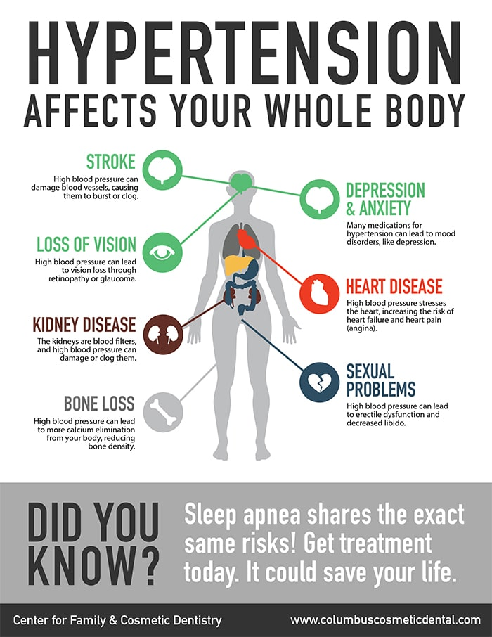 A digram of how hypertension and sleep apnea are related and the risks involved, find out more about the relationship at Firouzian Dentistry in Columbus Ohio