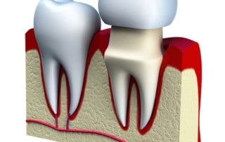 Dental Crowns: Strength and Beauty