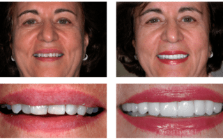 Woman's before and after getting treatment at Firouzian Dentistry