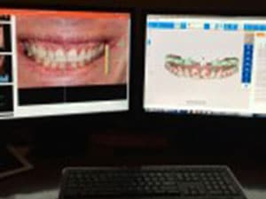 A image of what dental imaging is