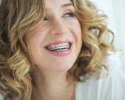 woman with metal braces shows off her smile
